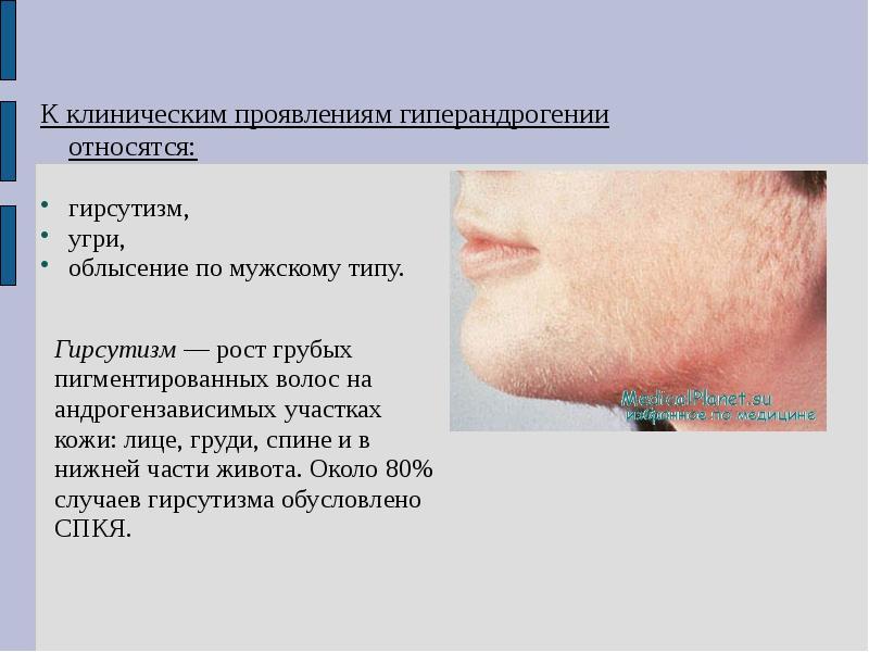 Гиперандрогения: признаки