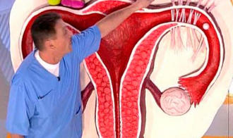 Спайки в женском организме: понятие патологии, ее принцип развития и лечения