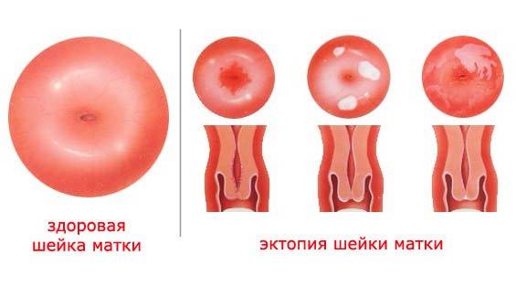 Цервикальная эктопия: понятие проблемы