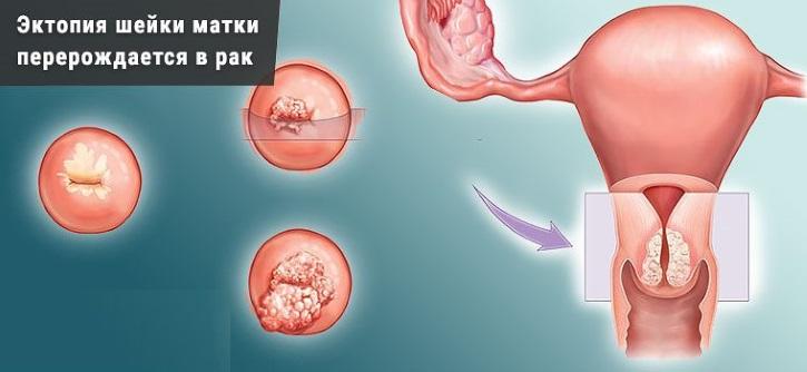 цервикальная эктопия с плоскоклеточной метаплазией