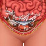спайки в женском организме - понятие патологии, ее принцип развития и лечения.